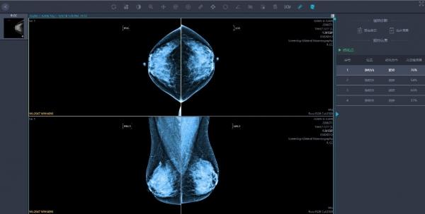 爱护乳腺,AI不宜迟 ----英特尔人工智能助力乳腺癌早筛及诊治