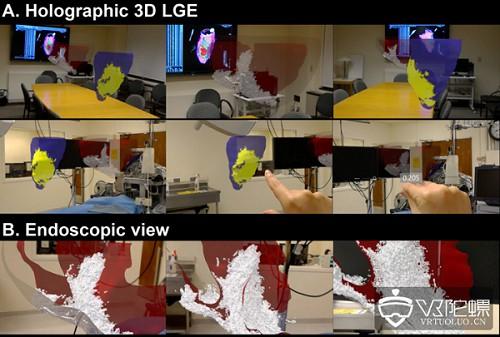 AR 3D全息视觉,实现术中医疗数据手势交互