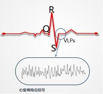 容易被身体忽视的危险信号——心室晚电位