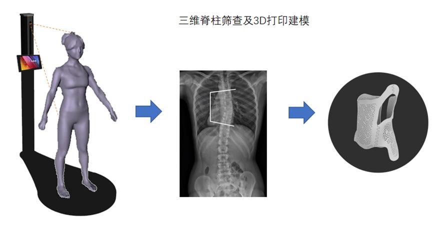 步影医疗通过AI视觉技术聚焦青少年脊柱侧弯病种
