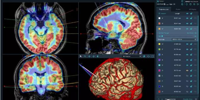 首款国家创新神经外科手术机器人获批上市!
