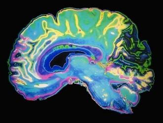 人工智能+人脑影像学预测神经系统疾病