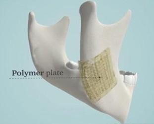 """3D打印陶瓷支架助力生长""""真正的骨骼"""""""