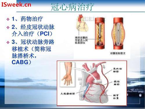 应用在静息心脏诊断冠状动脉狭窄的光纤压力传感器