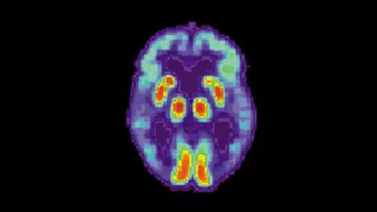 AI诊断出老年痴呆的效率远超人类
