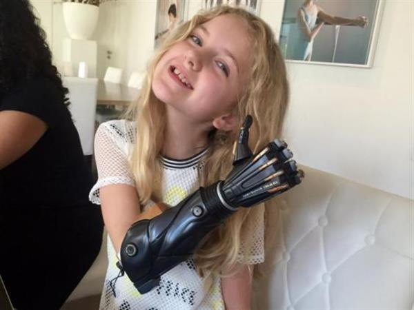 "Open Bionics获466万英镑投资 为儿童3D打印""超级英雄""仿生手臂"