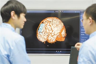 """机器人""""操刀"""" 神经外科手术"""