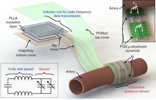 斯坦福大学研发血流传感器 植入之后无需手术摘除
