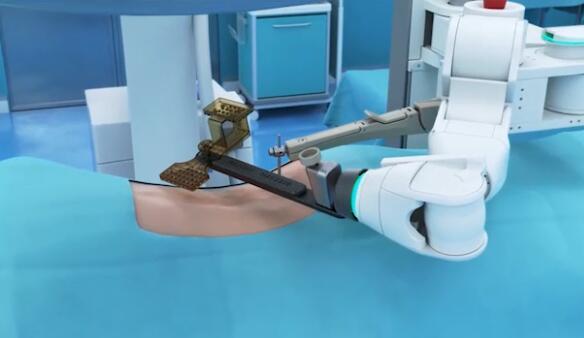 手术机器人正在打开医疗市场