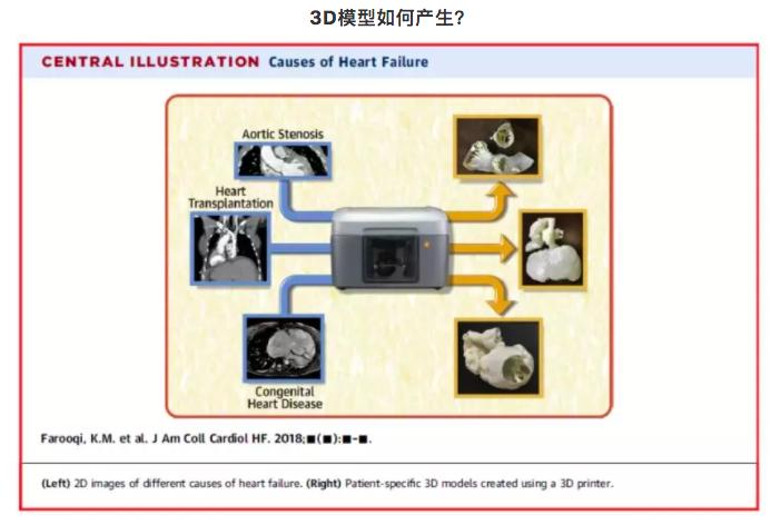 3D打印技术在心衰疾病的应用方向