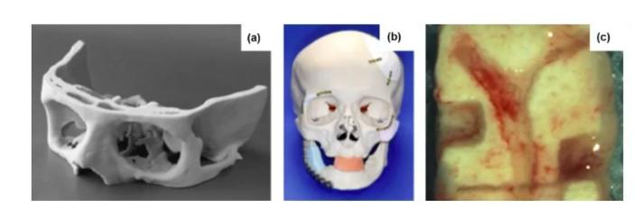 深度解析:3D打印骨组织工程支架研究