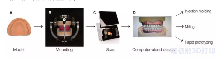 与磨制和注射成型假牙相比,3D打印假牙如何叠加?