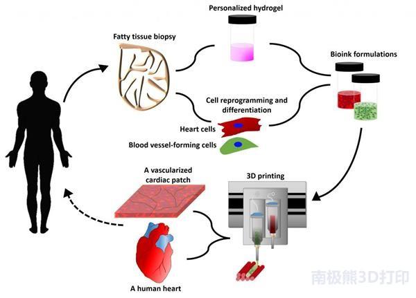 世界首个人体组织3D打印心脏完成