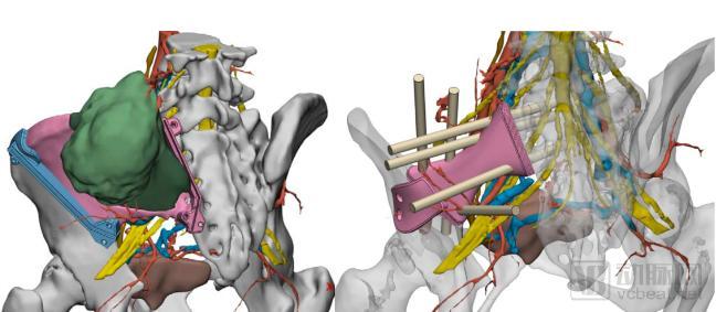 "3D打印、AI打开肿瘤精准诊疗的""黑匣子"""