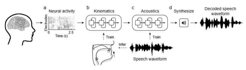 """让失声群体重获""""新声"""",脑机接口领域现重大突破"""