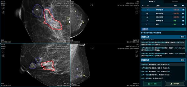 医准智能发布乳腺钼靶3.0系统 20秒完成乳腺全病种分析