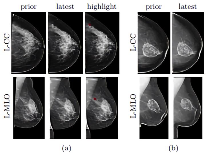 纽约大学AI模型要帮助筛查乳腺癌
