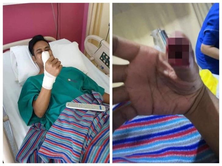 马来西亚一男子因钢化膜破裂继续使用手机致手指发炎