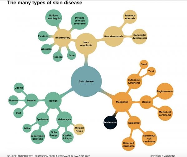 AI的醫學影像診斷率超過人類醫生