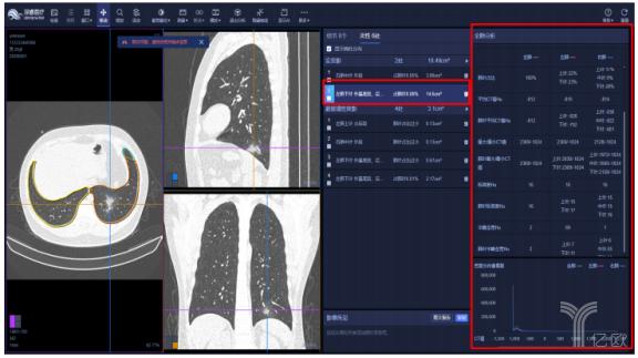 """CT+AI产品遍地,疫情""""催熟""""AI影像市场?"""