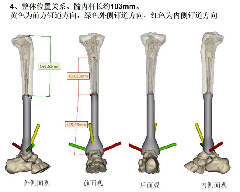 珠江医院林荔军教授团队完成国内首例3D打印胫骨远端假体术