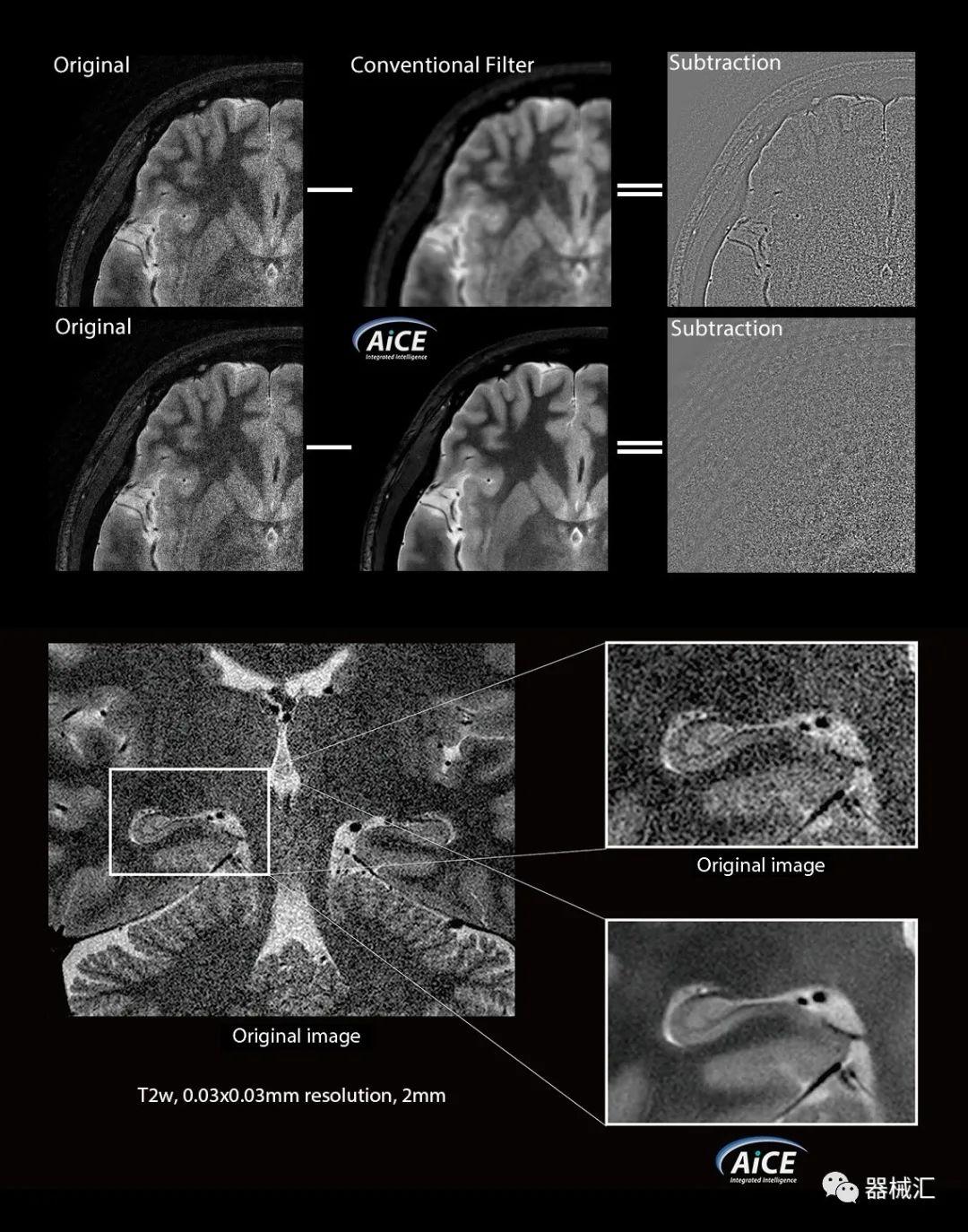 佳能医疗搭载AiCE技术的磁共振获FDA批准