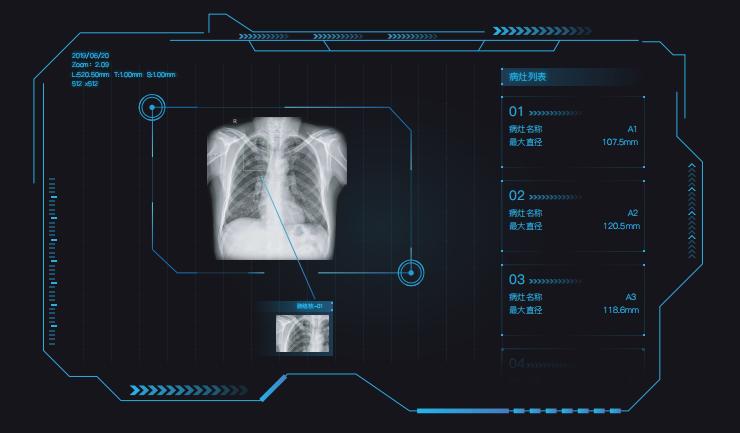 AI醫療助力全球抗疫,凸顯和社會價值
