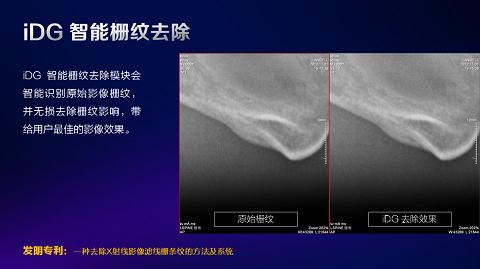 数字化X线摄影未来趋势之超低剂量化