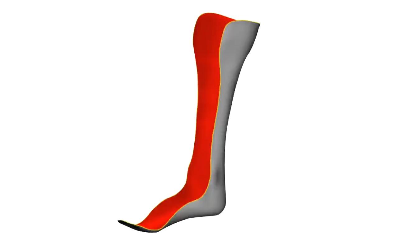 定制足托,先临三维3D数字化技术帮助烧伤患者正常行走