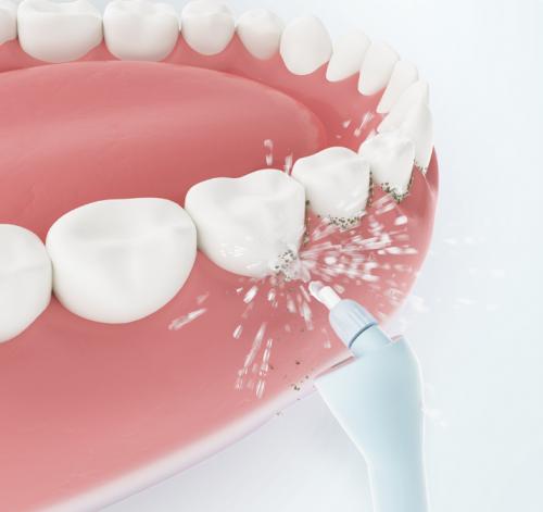 正畸人士福音!素诺智能可视冲牙器C3 pro看得清,冲得净