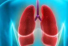 我国自主研发治疗非小细胞肺癌药获批临床试验