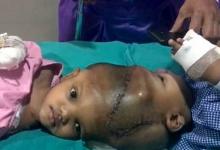 印度头部连体双胞胎分离手术成功