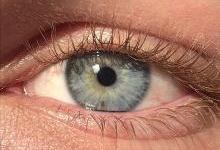 新激光手术20秒可让眼珠变蓝色