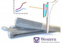 分析3D打印技术在医疗植入物研发与制造中的应用价值