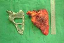 解析3D打印技术在骨组织支架材料的应用