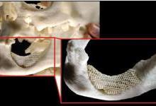 解析3D打印钛及钛合金在颌骨缺损修复中的应用