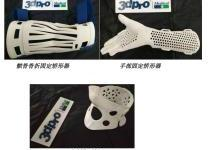 定制化3D打印矫形器让医疗手术更加精准