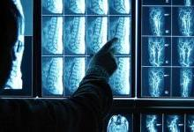 医疗影像分析还需结合传统模式
