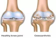 韩国批准全球首个用于膝骨关节炎治疗的基因疗法