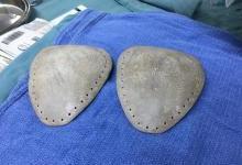 六龄童心脏外悬,3D打印修复其胸骨