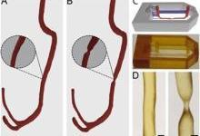 3D打印微流体模型助力研究血栓成因