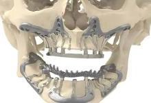 3D打印钛颌植入物可以减少手术时间
