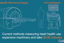 这款APP可取代超声测量法 两分钟即可诊断心脏健康