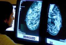 双磷酸盐或可降低乳腺癌死亡率