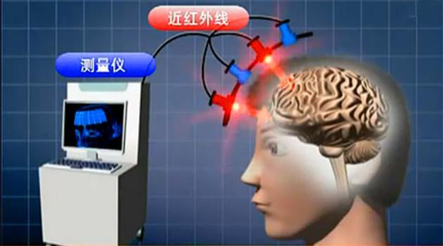 日本ETG4000脑电医疗器械简介