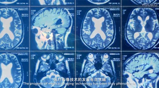英特尔加速医疗影像AI系统