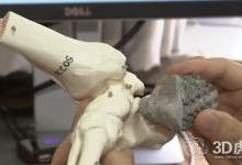 3D打印植入物并不比传统植入物更好