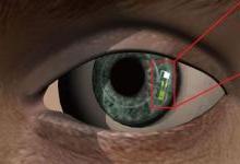 谷歌之后又来一款血糖传感智能隐形眼镜