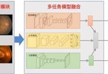 李彦宏发布百度AI眼底筛查一体机