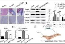 靶标SMAD7促进心肌梗死心肌纤维化